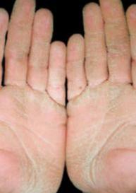 Hướng dẫn Chẩn đoán và điều trị Hội chứng viêm da dày sừng bàn tay, bàn chân